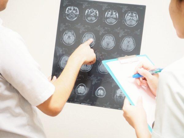 松方弘樹がわずらった脳リンパ腫とはどのような病気なのか?